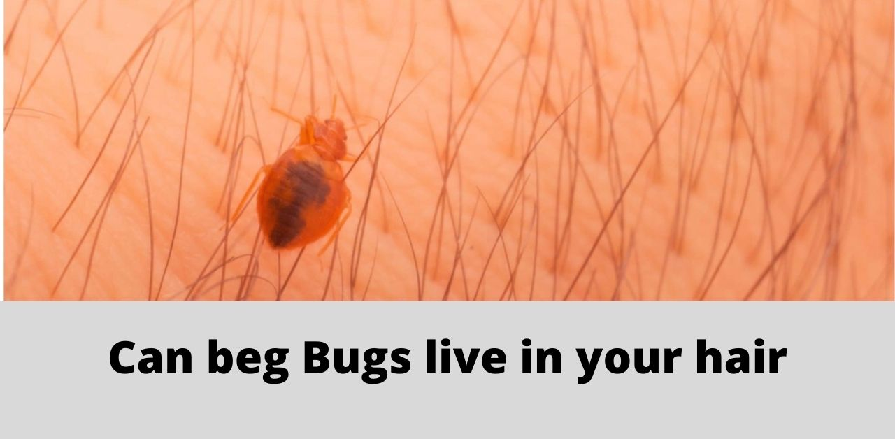Can beg Bugs live in your hair